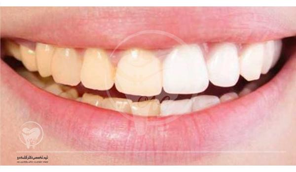 دندانپزشکی ضد پیری و جوان سازی صورت